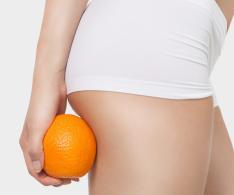 Cellulite 600x500 1 - Anti-Cellulite